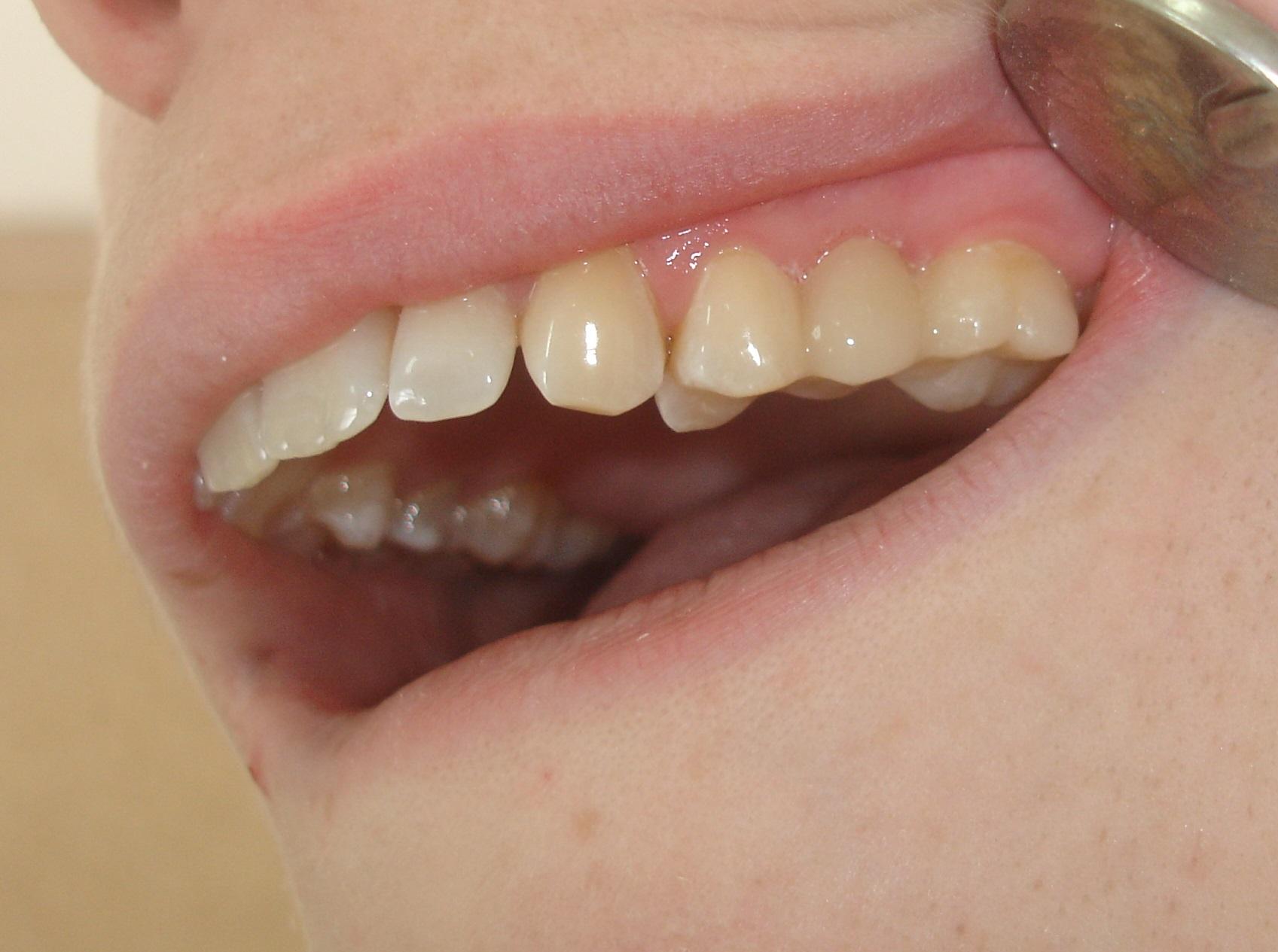 После микропротезирования врачем-стоматологом Филипповой Эллы Геннадьевны