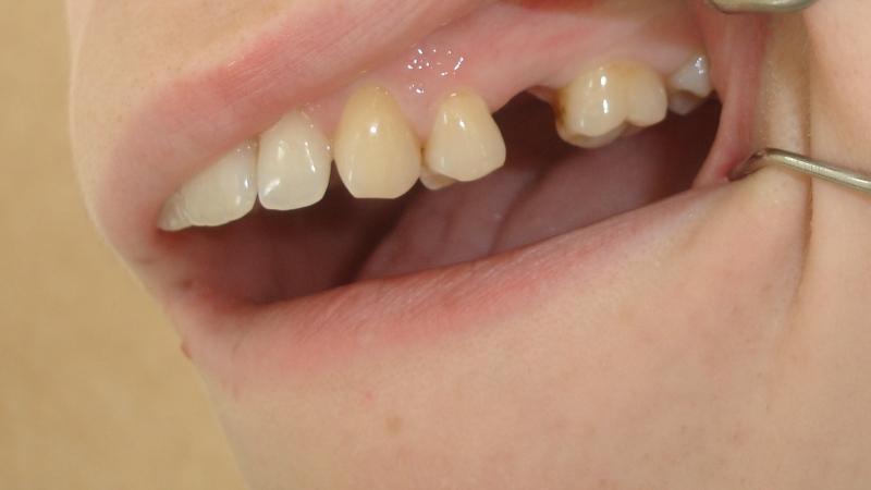 До микропротезирования врачем-стоматологом Филипповой Эллы Геннадьевны