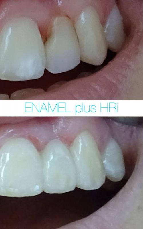 Enamel-Pic